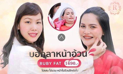 Ruby fat สลายไขมัน ruby clinic