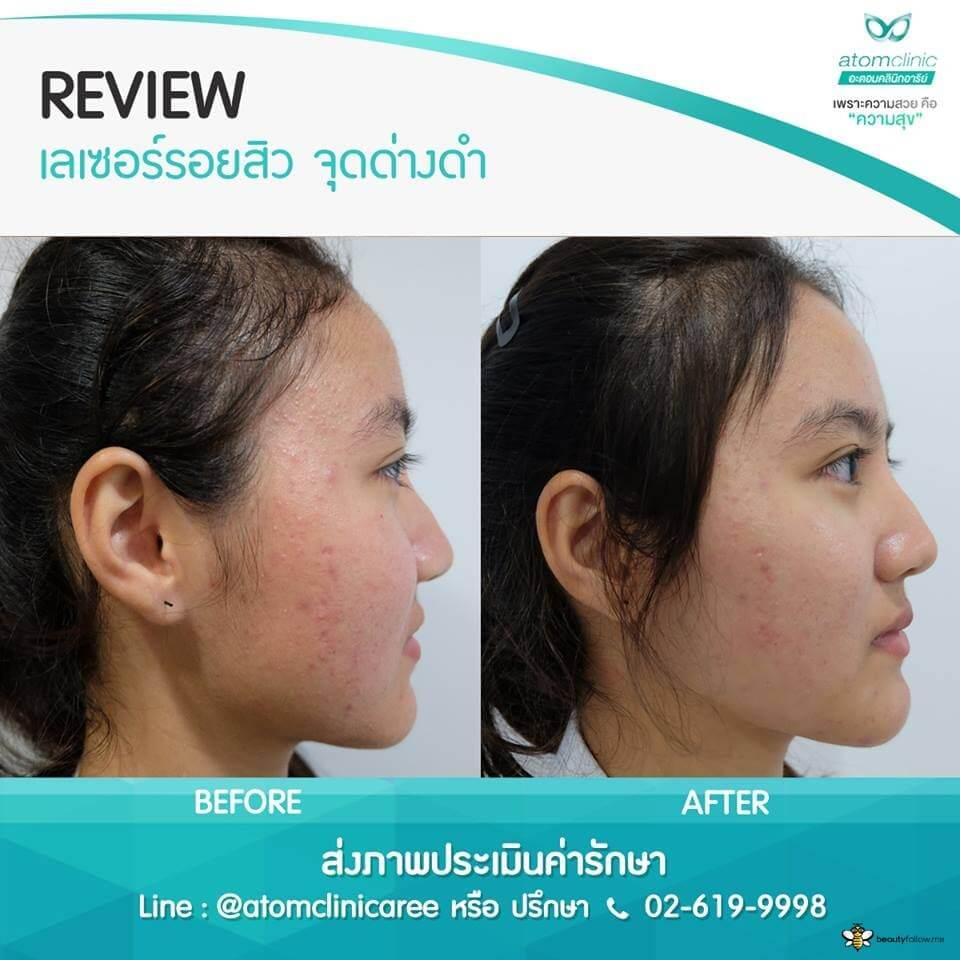รักษาสิว ( Acne Scar Clear )